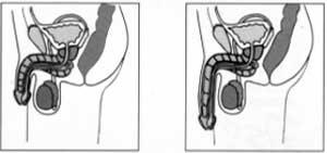marirea penisului 10